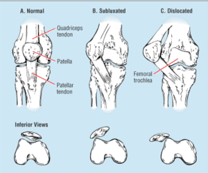 Picture of Normal, Subluxed, and Dislocated Patella
