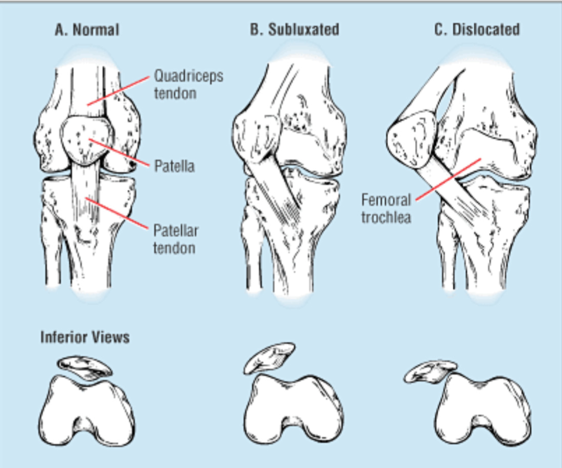 Patellar Instability | SSOR Physical Therapy